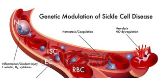 Sickle cell anemia symptoms